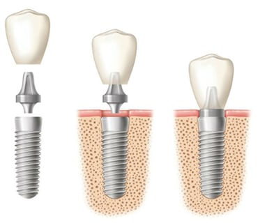 Diagram of a three dental implants: Left: Three components of the dental implant, including the root form, abutment, and the crown (hovering on top); 2: The root form in the bone with the abutment and crown hovering over it; 3: All components of the implant are in place with the root form in the bone.