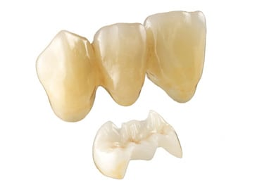 Photo of two types of e.max restorations: On the top is a series of three crowns for a dental bridge, and on the bottom is a porcelain overlay.
