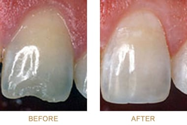 Before and after photos of dental bonding, which is available to repair cracked or chipped teeth, from Poplar Crossing Dental in Hoffman Estates, IL.