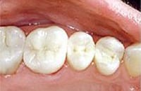 After photo of five lower teeth, including molars, for information on Hoffman Estates mercury-free dentistry from Dr. William Becker.