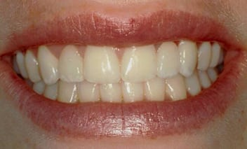 After close-up photo of a woman's mouth. She is smiling to show her dental bridge, made of porcelain crowns, which replaced her upper lateral incisors.