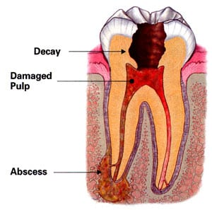 Diagram of the inside of a tooth from the top to its roots. Pictured inside the tooth and labeled are 1) decay at the crown, 2) red damaged pulp, and 3) an abscess at the tooth root.