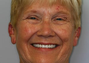 Photo of Dottie after smile makeover