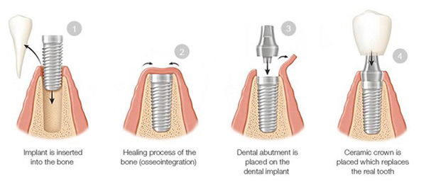 Diagram of four phases of the dental implant process, 1) implant insertion, 2) healing process, 3) abutment placement, 4) crown placement.