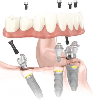 Image of a dentures being anchored to all on four dental implants