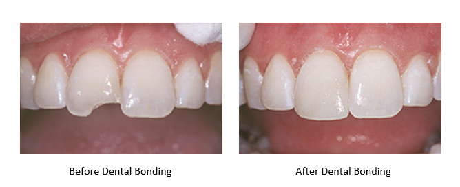 Before and after teeth bonding