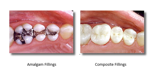 before and after silver amalgam fillings